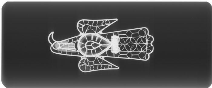 radiografía digital